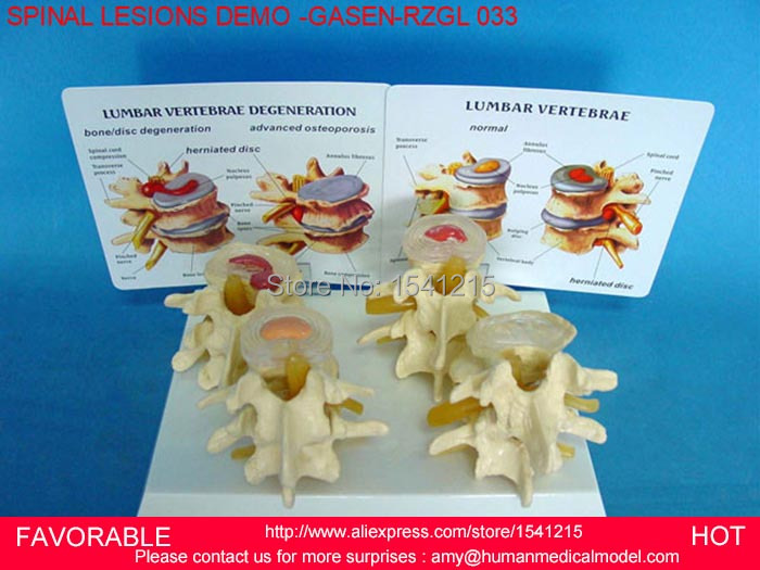 LUMBAR MODEL SPINAL NERVE MODEL CAUDAL EQUINA NERVE LUMBAR SPINE DISC MODEL SPINE SPINAL LESIONS DEMONSTRATE -GASEN-RZGL033 medical teaching model anatomy biological4 stage model of lumbar intervertebral disc herniation model of lumbar spine model