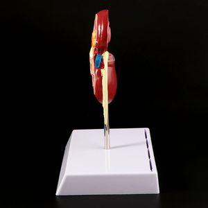 Image 3 - Nieren Kranken Modell Anatomischen Anatomie Kranken Pathologischen Stein Orgel Lehre Liefert L29K