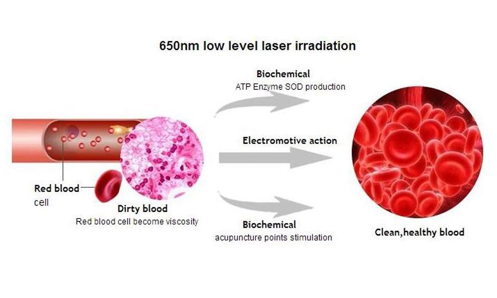 LASTEK-diabetes-machine-low-level-laser-therapy-wrist-watch-blood-pressure (7)