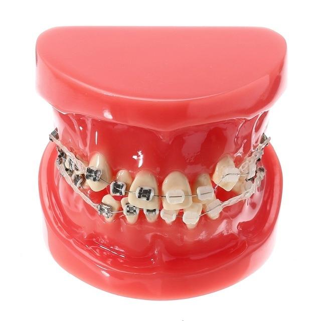 New Dental Kieferorthopädische Behandlung Malocclusion Modell Mit ...