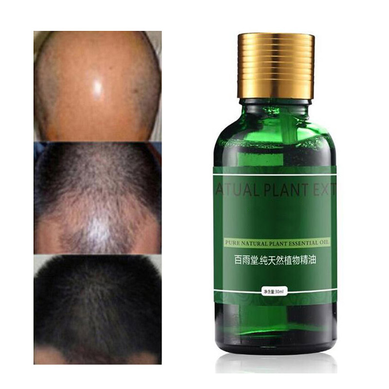 30ml Hair Care for Hair Growth Essence Essential Oils Hair Loss Liquid Dense Hair Growth Serum
