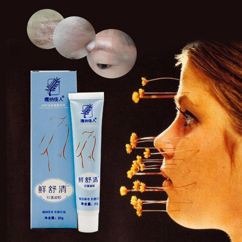 Körper Psoriasis Dermatitis Und Ekzeme Juckreiz Psoriasis Haut Probleme China Kräuter Bakteriostatische Gel Psoriasis Cremes