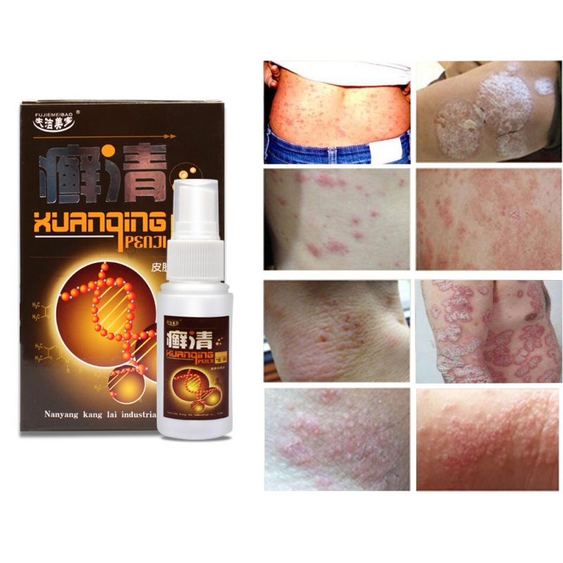 100% Natural Pure Body Creams Psoriasis Dermatitis And Eczema Pruritus Psoriasis Effective Treat Dryness and Sooth Nerve image