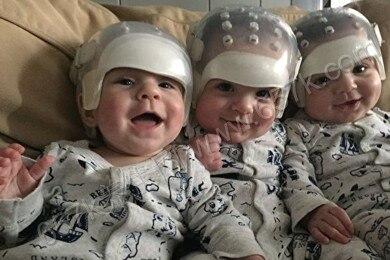概率500兆分之一 罕病三胞胎改写医疗史