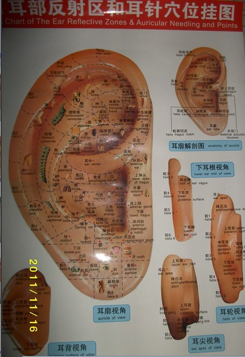 thesis of auricular acupuncture Treating peripheral neuropathy with acupuncture and chinese medicine by:  peripheral neuropathy is a condition that can be treated with acupuncture.