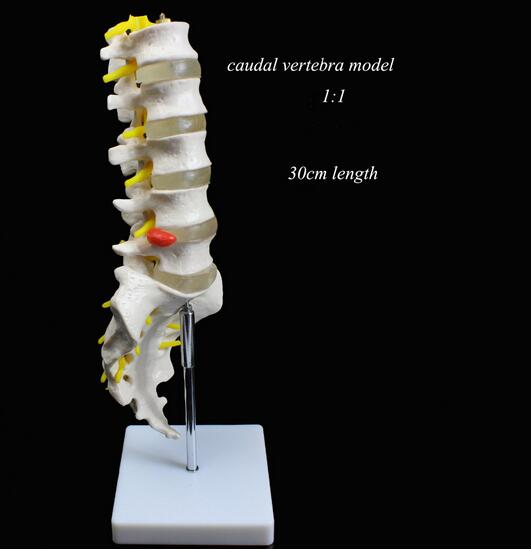 Medical use teaching Lumbar vertebra natural 1:1 adult caudal vertabra model orthopedics model umbar disc herniation model 30cm medical teaching model anatomy biological4 stage model of lumbar intervertebral disc herniation model of lumbar spine model