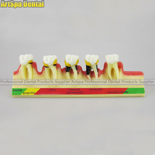 Dental Periodontal Disease assort Tooth Teeth Typodont Study Teaching Model liandlee dvb t2 car digital tv receiver host dvb t2 mobile hd tv turner box antenna rca hdmi high speed model dvb t2 t337