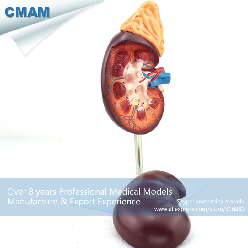CMAM-KIDNEY05 Human Kidney with Adrenal Gland Anatomical Model,  Medical Science Educational Teaching Anatomical Models cmam dental07 human dental demonstration model of periodontal caries medical science educational teaching anatomical models