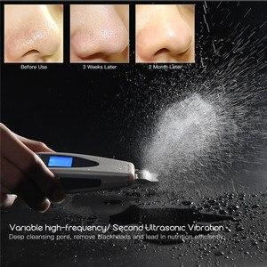 Image 1 - جهاز تقشير الجلد بالموجات فوق الصوتية كهربائي مقشر مسام الوجه منظف ملعقة LCD جهاز تنظيف الوجه يعمل بالموجات فوق الصوتية الاهتزاز