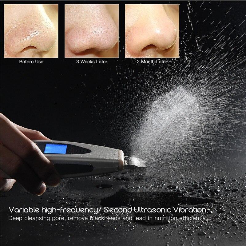 Electric Ultrasonic Skin Scrubber Peeling Exfoliator Face Pore Cleaner Spatula LCD Ultrasound Vibration Facial Cleansing Machine