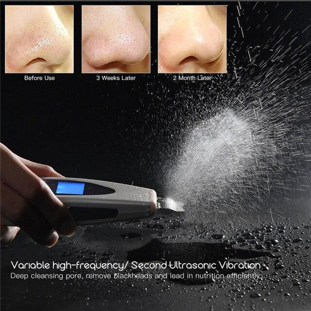 חשמלי Scrubber עור קולי קילוף פילינג פנים מנקה נקבובית מרית LCD אולטרסאונד רטט פנים ניקוי מכונת