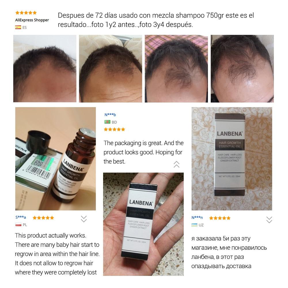 LANBENA Fast Powerful Hair Growth Essence Products Essential Oil Liquid Treatment Preventing Hair Loss Hair Care Andrea 20ml 3