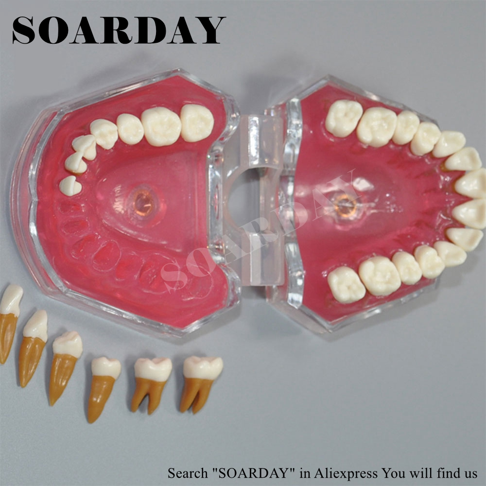 SOARDAY Dental Standard Model Tooth Removable Soft Gums Dental Teaching Dentist Communication Model soarday tooth root canal restoration model oral dental training materials tooth nerve model