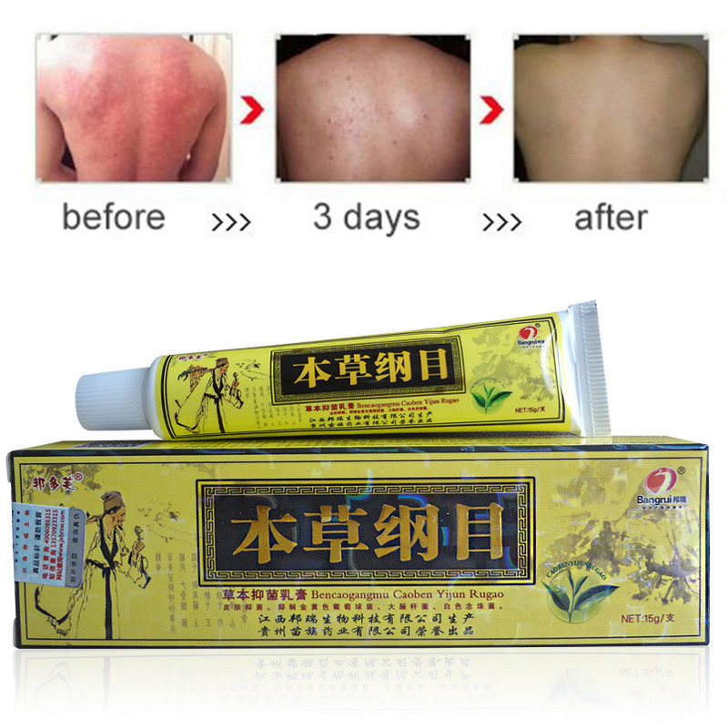 15g Psoriasis Cream For Dermatitis And Eczema Pruritus Psoriasis Ointment Traditional Chinese medicine classic Herbal Creams J19 image