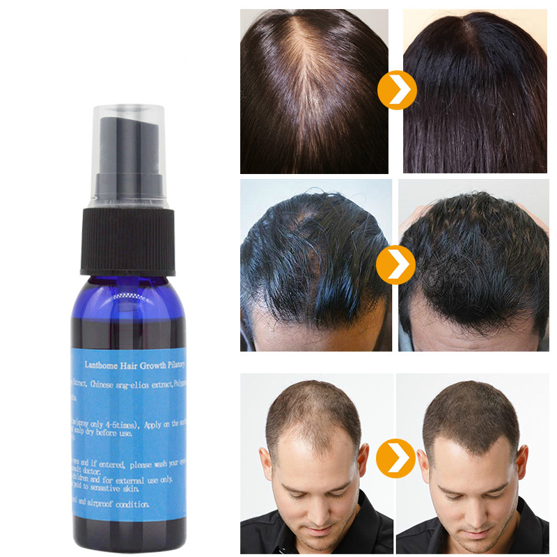 Minoxidil Fast Hair Regrowth Serum Hair Spray Essence Anti Hair Fall Treatment Beard Care Yuda Pilatory Women & Men