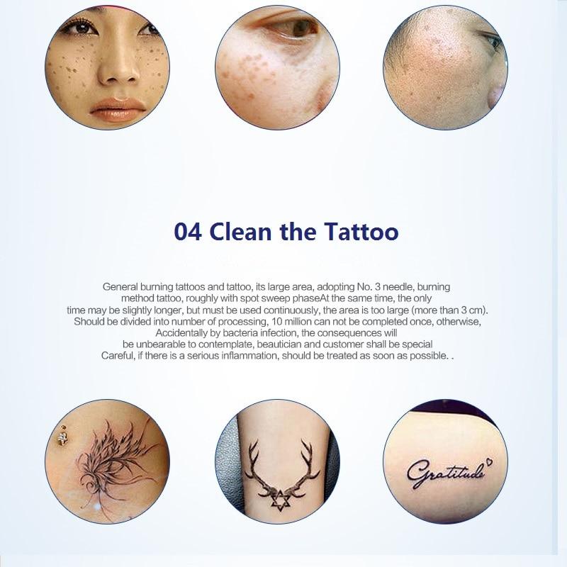 Pembersih Mole, Pen Pembuangan Tag Tag untuk Freckles, Moles, Tempat - Alat penjagaan kulit - Foto 5
