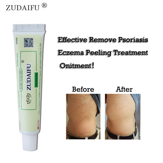 20pcs Original ZUDAIFU Psoriasis Dermatitis Eczema Pruritus Skin Problems Cream with Retail Box Drop Shipping & Wholesale
