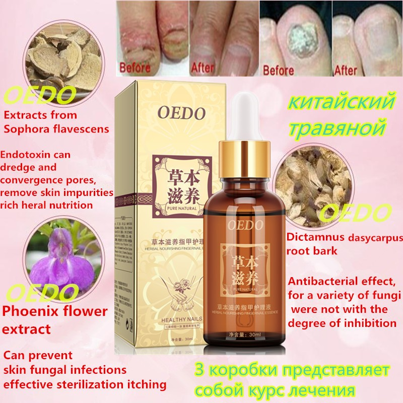 Herbal Fungal Nail Treatment Essential oil Hand and Foot Whitening Toe Nail Fungus Removal Infection Feet Care Polish Nail Gel
