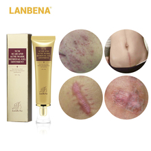 LANBENA Acne Scar Removal Cream Skin Repair Face Cream Acne Spots Acne Treatment Blackhead Whitening Cream Stretch Marks 30ml cheap Unisex 321686512 Plant extracts