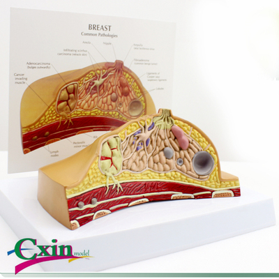 Breast common disease breast pathology anatomical model Have a disease, a lump, a cancerous Instruction board 16*13*12cmBreast common disease breast pathology anatomical model Have a disease, a lump, a cancerous Instruction board 16*13*12cm