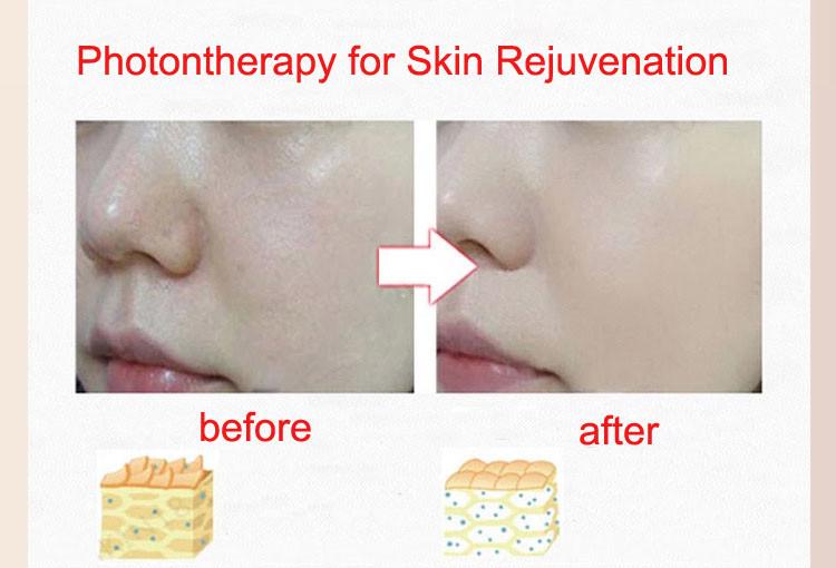 skin rejuventation comparison