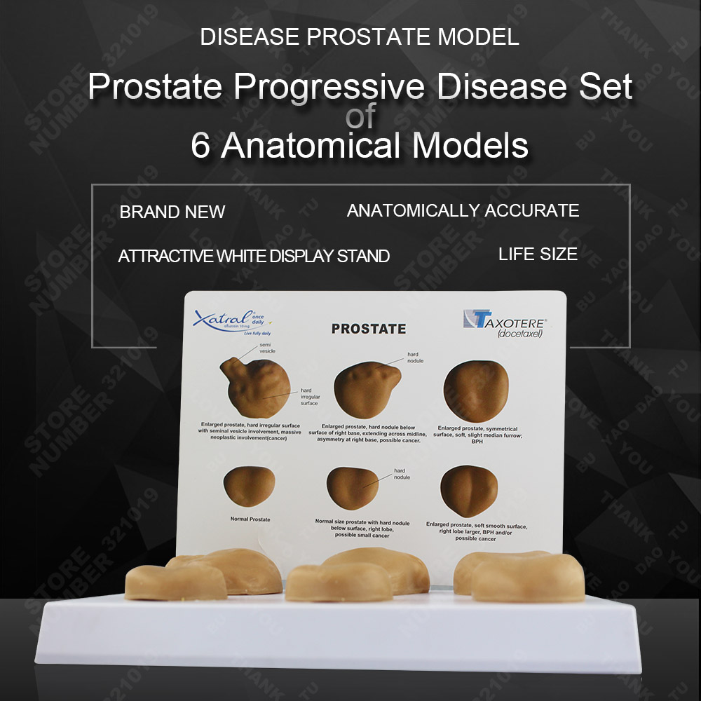 Six full size normal prostate and pathology prostate contrast model six crows
