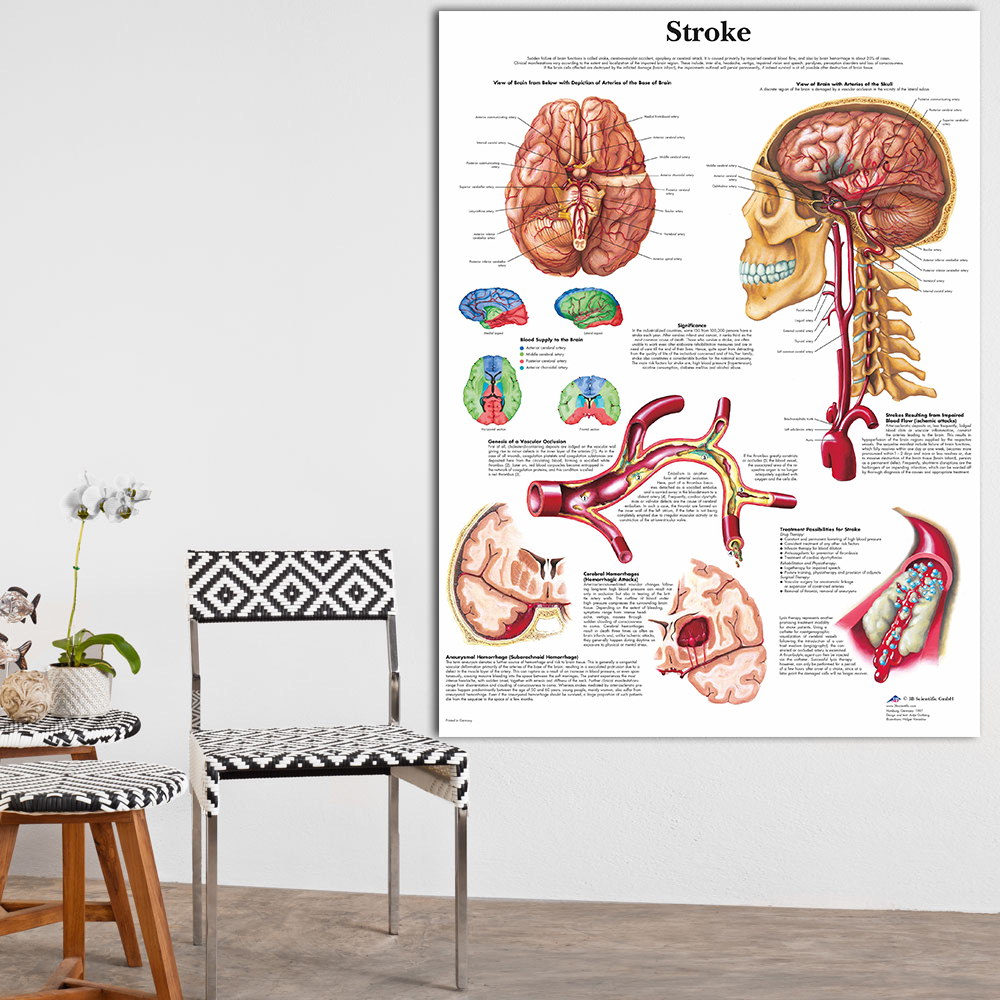 hight resolution of anatomy of brain in stroke anatomical chart neurological posters pathology canvas wall pictures for medical education home decor