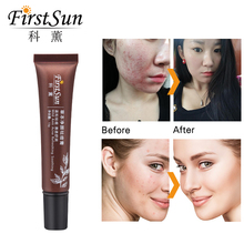Firstsun Melasma Cream Blemish Removal Serum Acne Scars Treatment Pimple Patch A