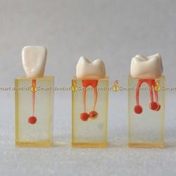 1 комплект х Смола зубные канал эндодонтического студентов практика Управление модель с Цветной корневого канала
