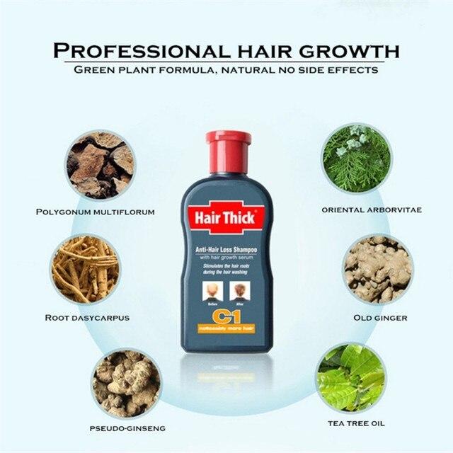100ml Anti Hair Loss Shampoos Hair Thicken Treatment Oil Control