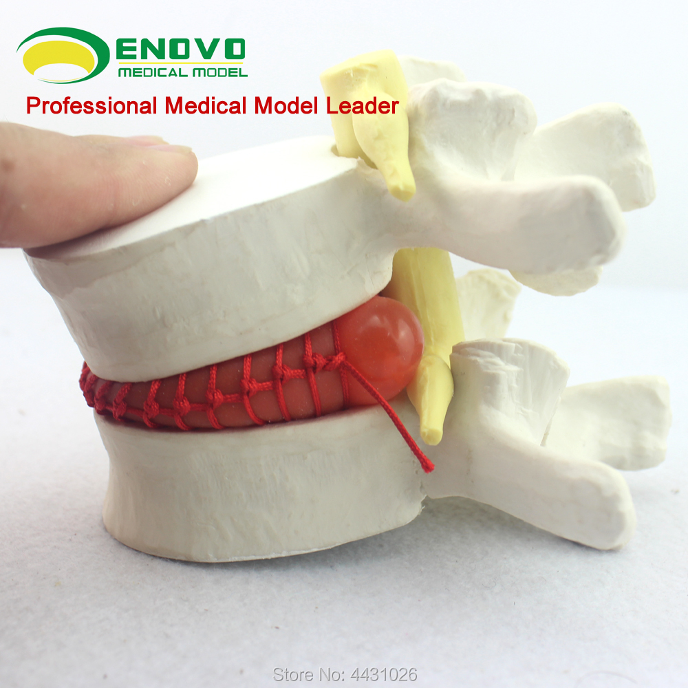 ENOVO The spine model of spinal nerve model was demonstrated in the medical human body lumbar disc