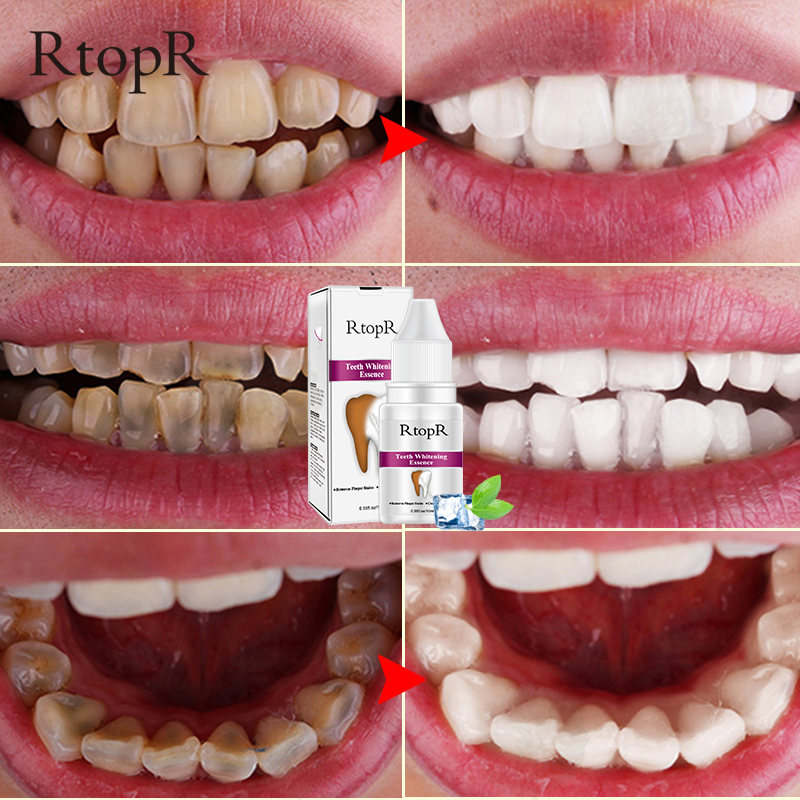 Teeth Oral Hygiene Essence Whitening Essence Daily Use Effective Remove Plaque Stains Cleaning Product teeth Cleaning Water 10ml 3
