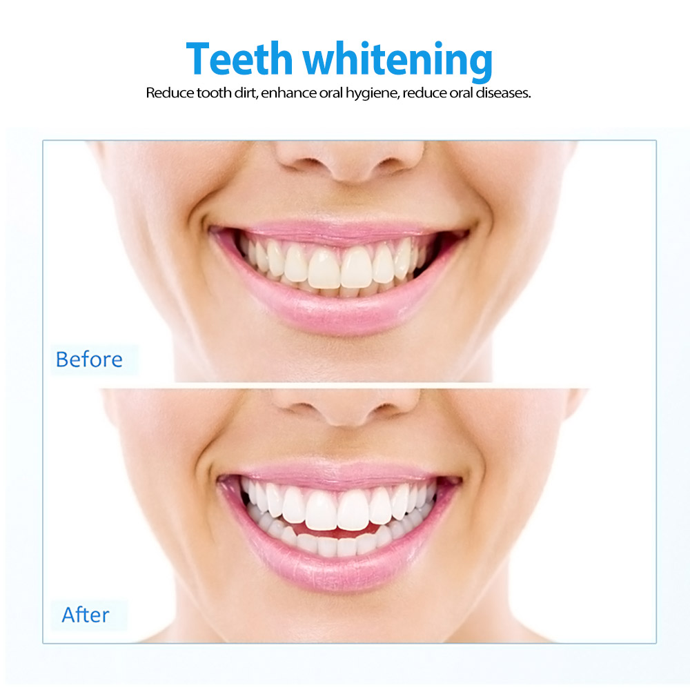 6Pcs Lot 44 Peroxide Tooth Whitener 5ml Oral Gel Dental Trays Teeth Whitening Lamp Bleaching Home Kit Equipment In From