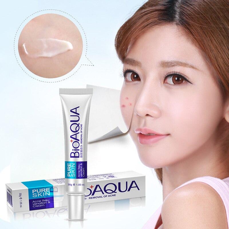 Dropshipping  Bioaqua 30g Anti Acne Cream Oil Control Shrink Pore Acnes Scar Remove Face Care SMJ