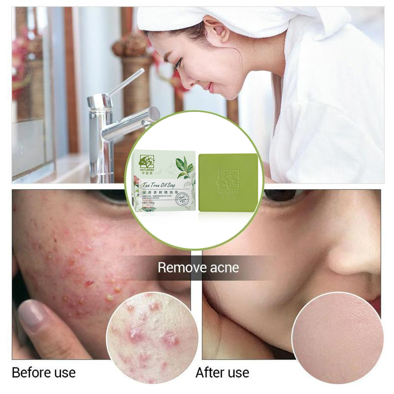 Tea Tree Essential Oil Handmade Soap Moisturizing Acne Remover Soaps Oil Control Cleaning Skin Care p1