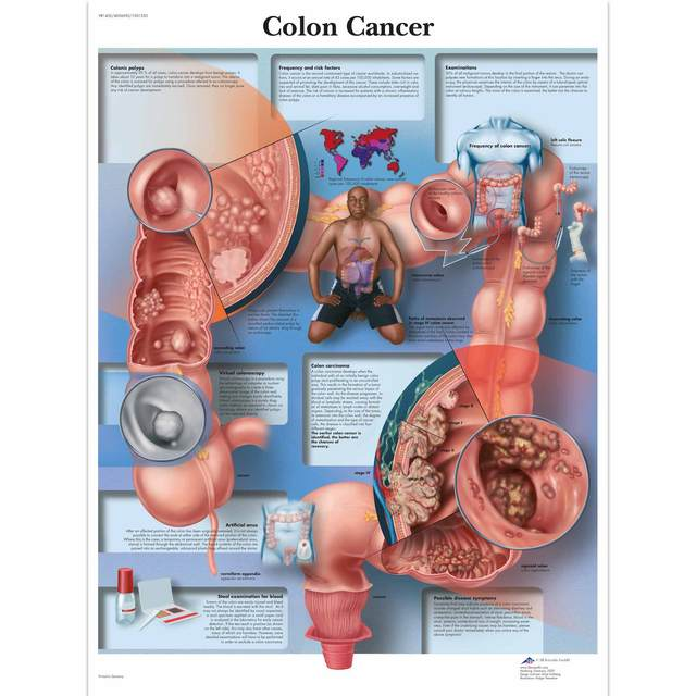 Anatomy Pathology Anatomical Poster Colon Cancer Chart Classic