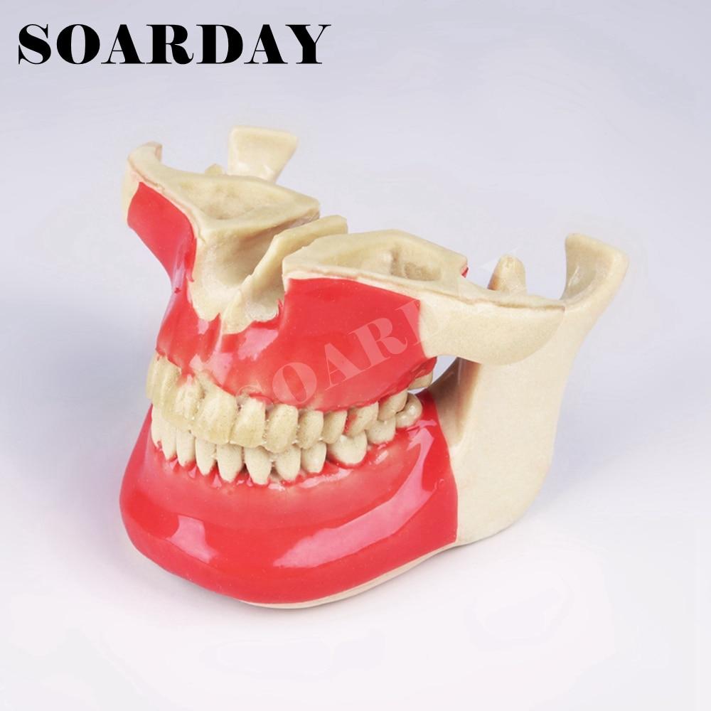 Implant Dental Practice model Foam plastic Imitation bone silicone skin Oral teaching practice model skin block model skin section model human skin anatomical model