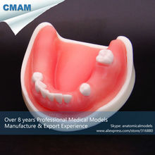 CMAM-DT2008 Implant Practice Mandibular Jaw Model for Flap and Drilling Practice