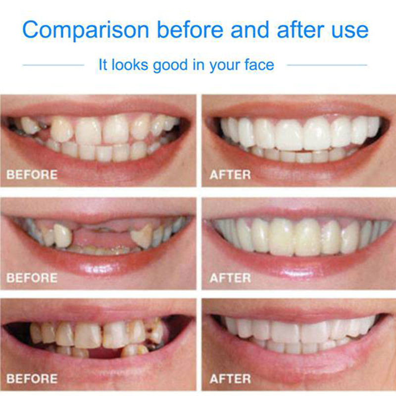 JEYL  Smile Comfort Fit Flex Cosmetic Teeth Denture Teeth Top Cosmetic Veneer 2