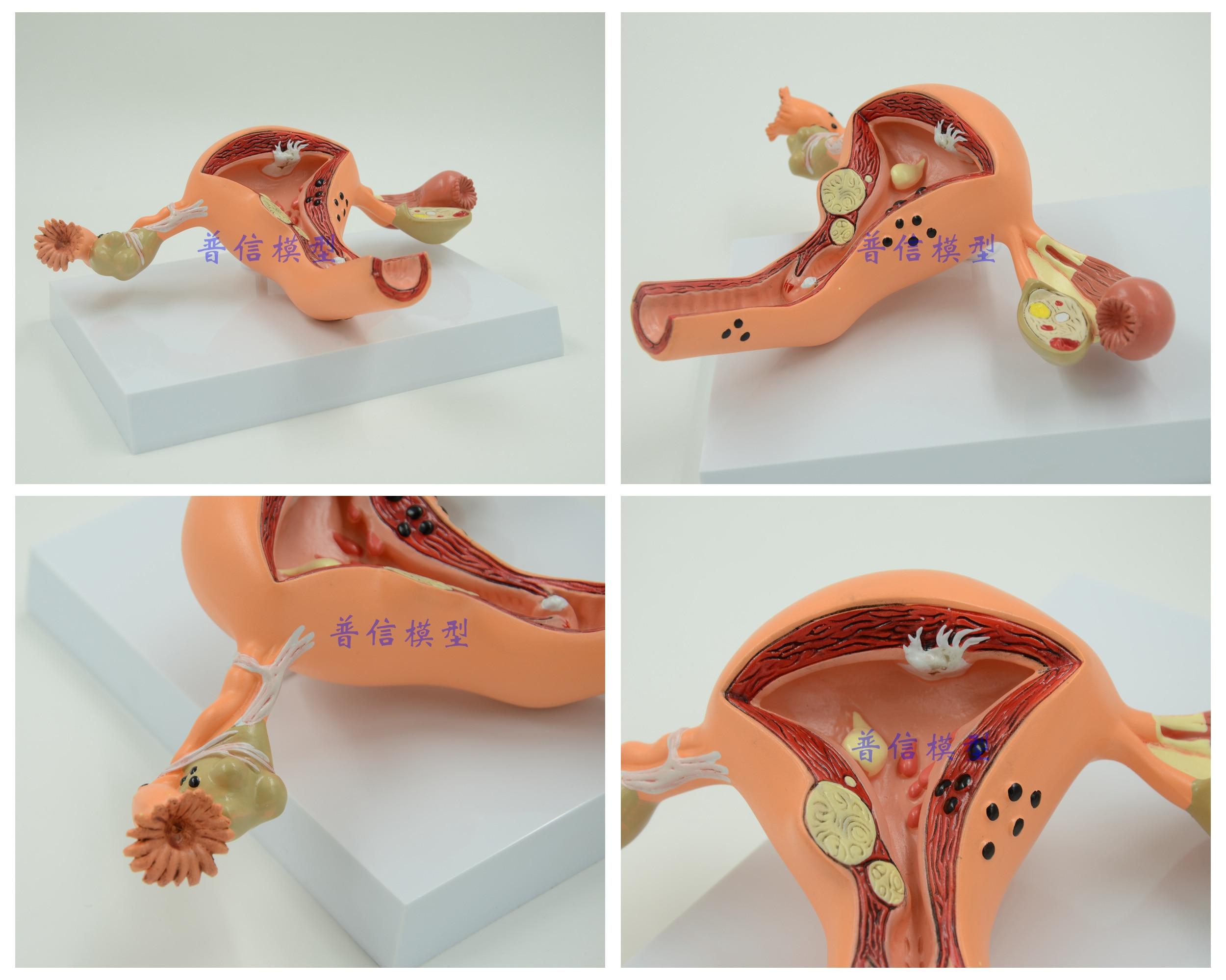 Großartig Gebärmutter Und Des Gebärmutterhalses Anatomie ...