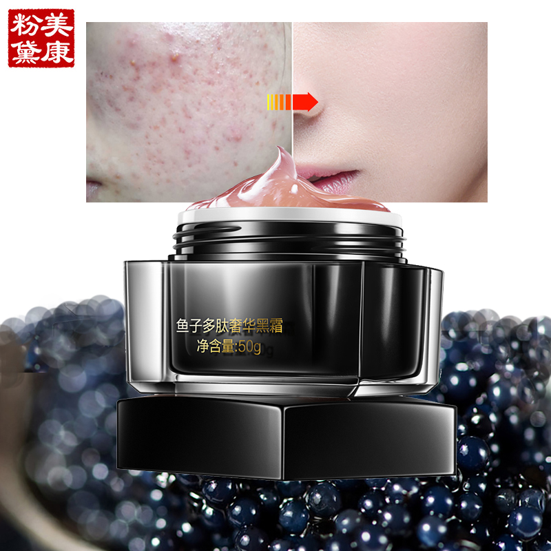 MEIKING Caviar Luxe Black Face Cream Skin Care Anti-Aging Acne Treatment Moisturizing Whitening Free Shipping 2017 New Face Care face care snail gel acne treatment removedor de cravos moisturizing repair whitening anti aging beauty face cream skin care