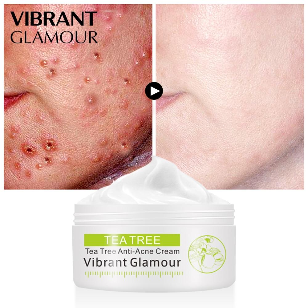 VIBRANT GLAMOUR Tea Tree Anti-acne Face Cream Acne Scar Shrink Pores Facial Eliminates Acnes Cream Oil control Repair Spot 2