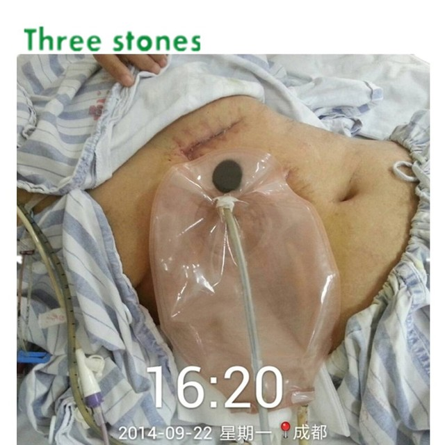 One Piece Open Colostomy Ileostomy Bag Ostomy Drainable Pouch For Stoma Surgery Hydrocolloid Chassis Barrier