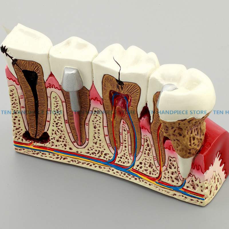 2018 good quality Caries Tooth Model Dentist Patient Communication Anatomy Model Dentistry Rich Details Teaching Aids Equipment soarday endodontic restoration model teaching practice dentist patient communication model odontologia dentistry