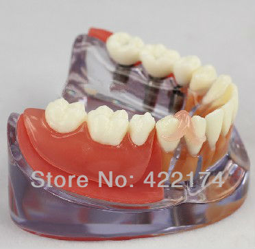 Free Shipping Implant & Restoration Model dental tooth teeth dentist dentistry anatomical anatomy model odontologia free shipping skull model 10 1 extraoral model dental tooth teeth dentist anatomical anatomy model odontologia