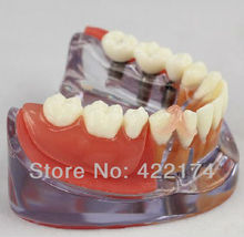 Free Shipping Implant & Restoration Model dental tooth teeth dentist dentistry anatomical anatomy model odontologia