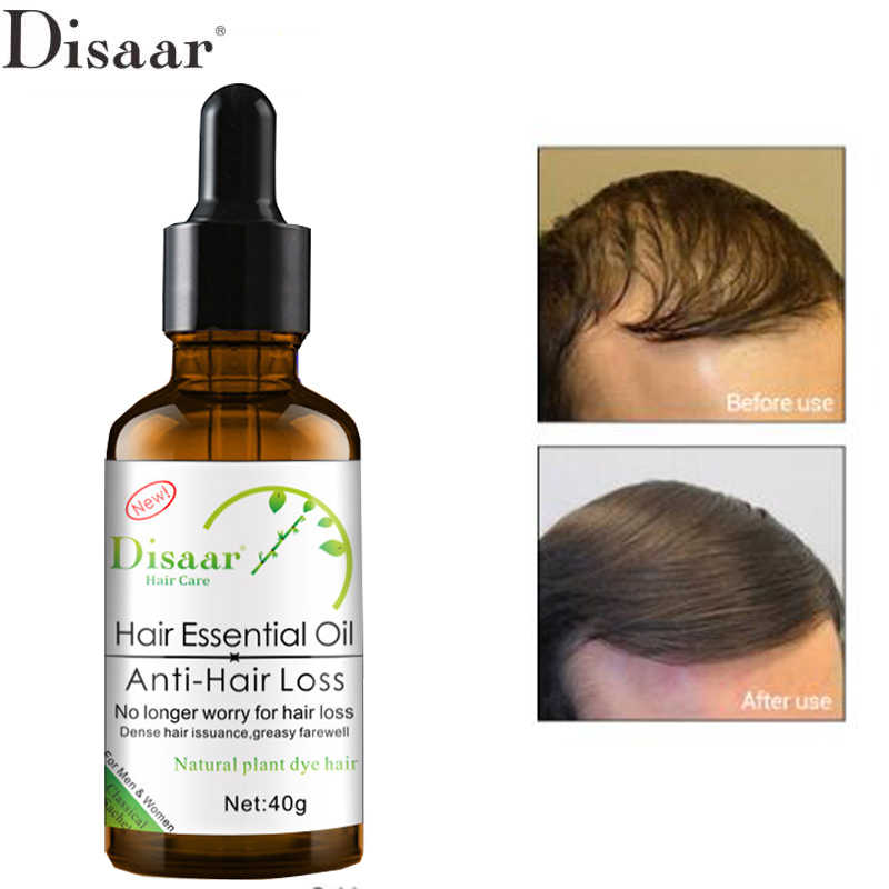 Disaar Fast Powerful Hair Growth Essence Products Essential Oil Treatment Preventing Hair Loss Hair Care Andrea 30ml
