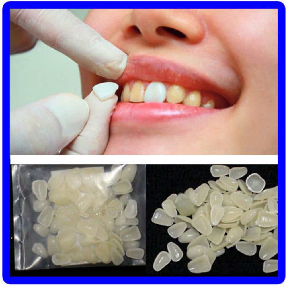 70pcs/pack Ultra-Thin Dental Temporary Crown Ultra Thin Resin Whitening Teeth Upper Anterior Shade Tooth Veneers