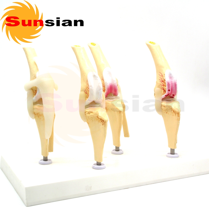 527518 Diseased dog knee joint skeleton model,dog skeleton,animal ...