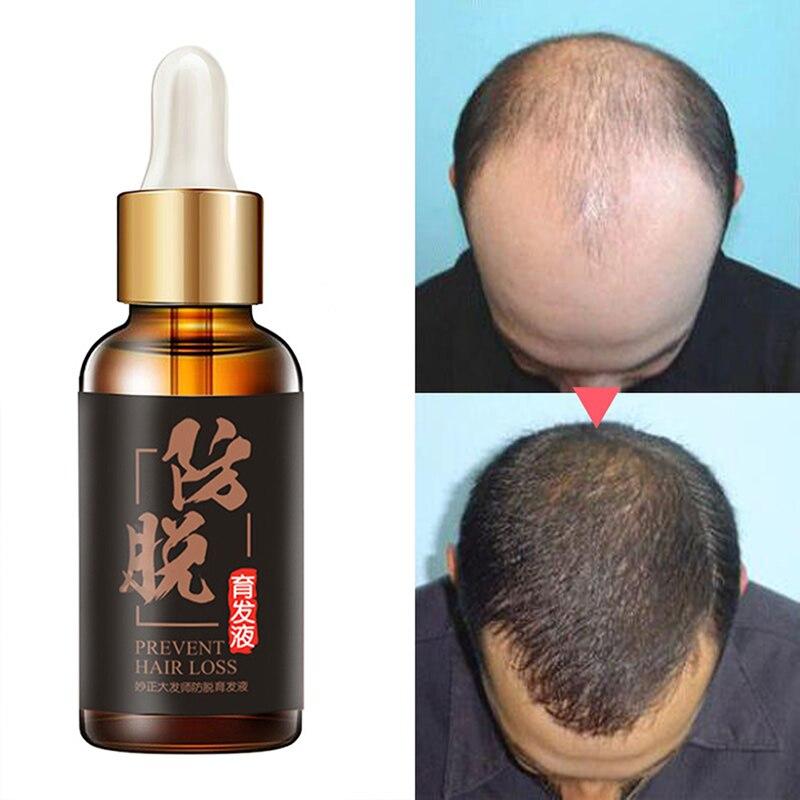 30ml Herb Hair Growth Essential Oils Hair Loss Products Thickening Essence Hair